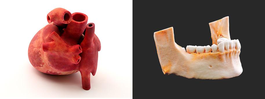3Dプリンタ医療モデル